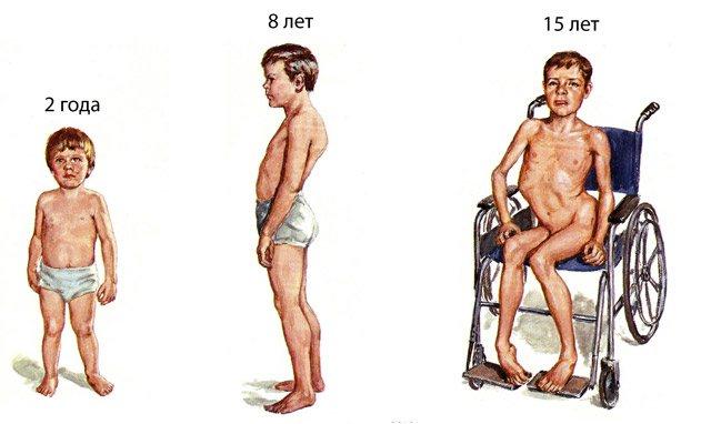 Новый препарат дает надежду мальчикам с мышечной дистрофией Дюшенна