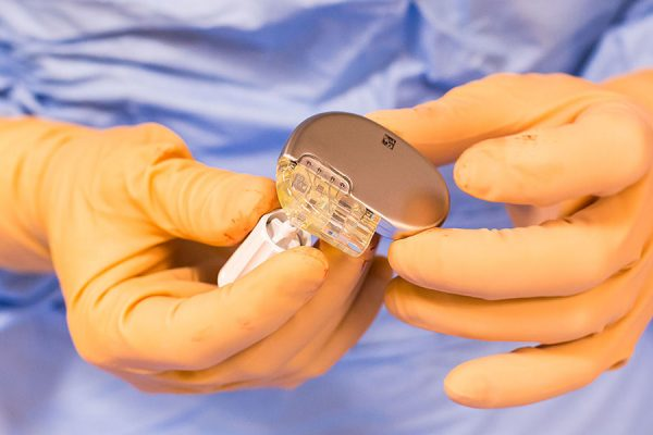 История медицины: кардиостимуляторы